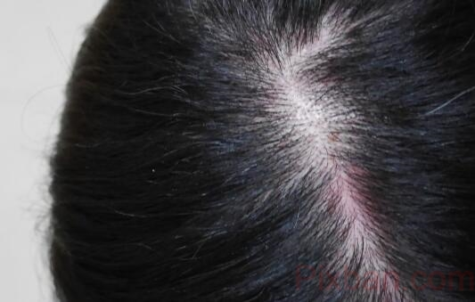 艾瑪絲Aromase 去屑止癢洗髮精 頭皮敏感、出油推薦洗髮精 女人/居家生活